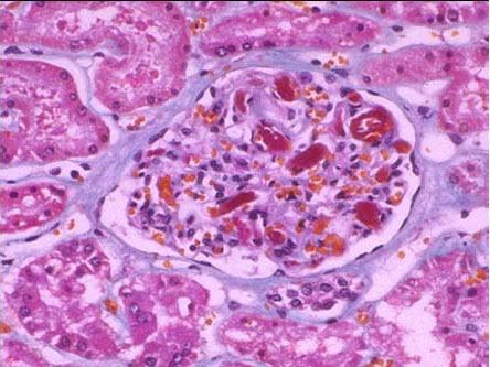 轻度系膜增生性肾炎_膜增生性肾炎